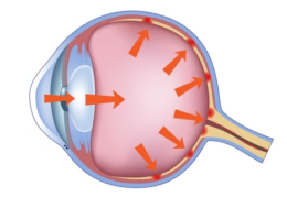 glaucoma-services-delhi-eye-centre