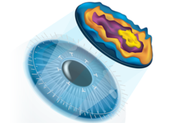 lasik-surgery-delhi-eye-centre